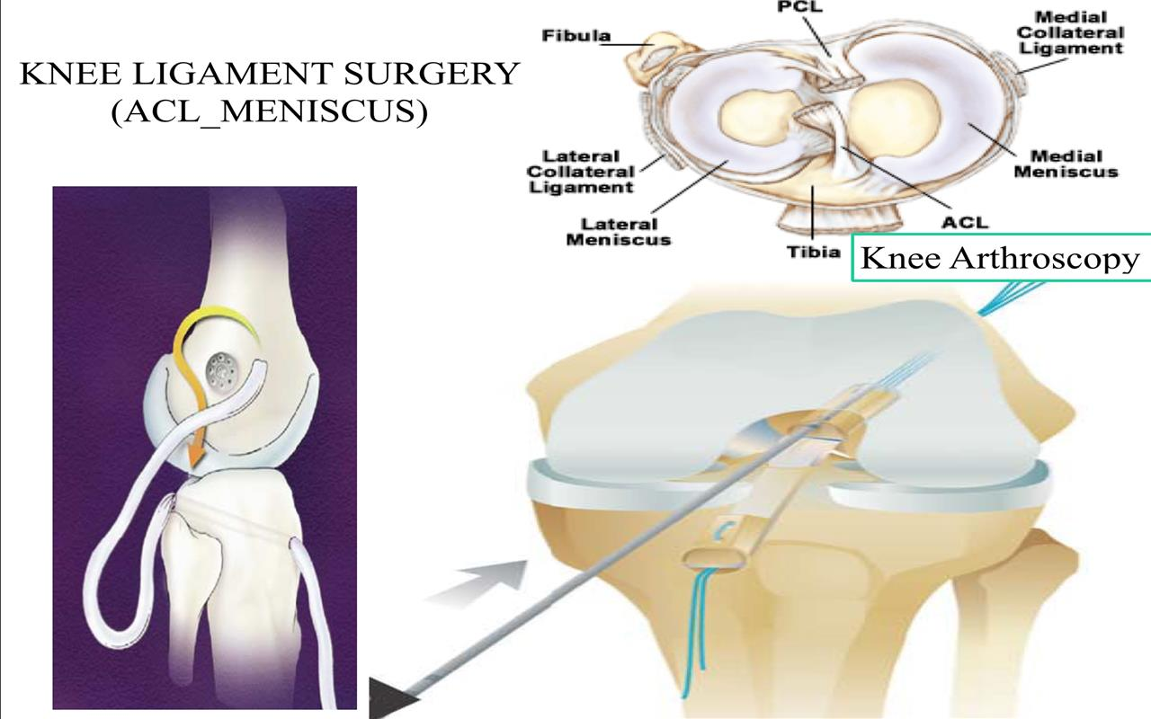 knee_arthroscopykey_hole_surgery
