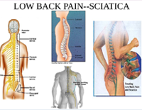Low Back Pain Sciatica