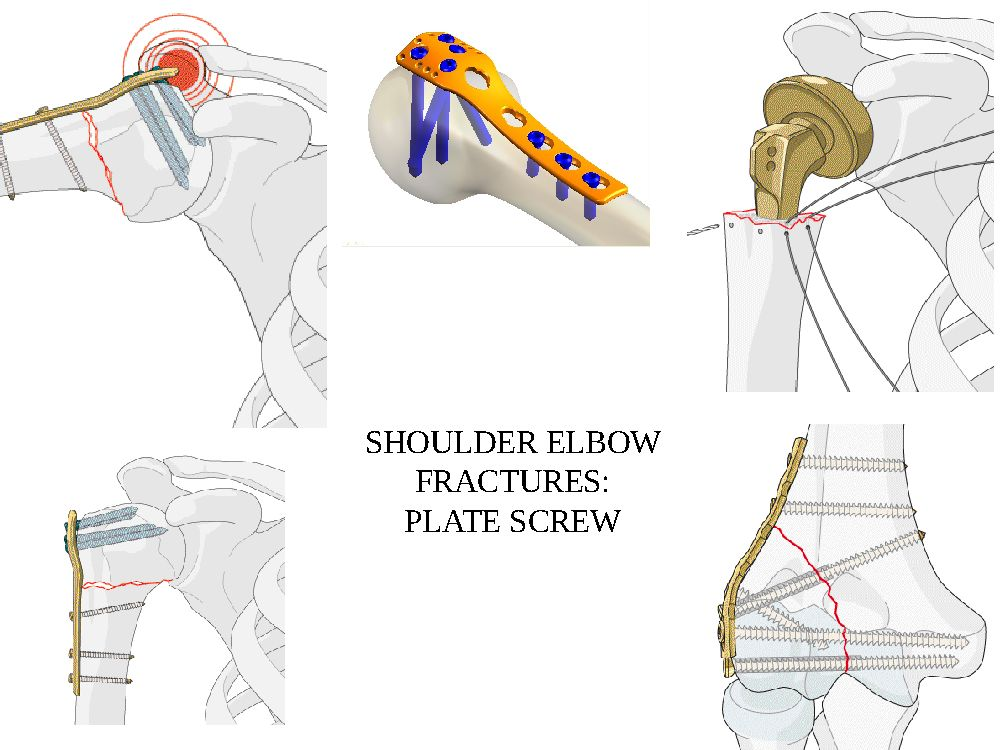 shoulder elbow surgery